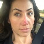 Женщина стала затворницей из-за выросшего вдвое носа (фото)